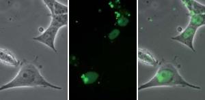 Mikroskopische Aufnahmen nach Proteofektion von HeLa-Zellen mit dem Protein GST-NLS-GFP und PROTEOfectene®