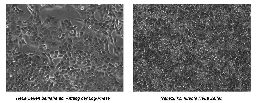 HeLa Zellen in der Log-Phase und konfluent
