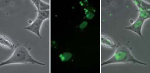 Microscopy following proteofection of HeLa cells with the GST-NLS-GFP protein and PROTEOfectene®