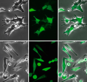 High-resolution images of transfection of HeLa cells with pCMV-GFP using μ-Transfection Kit VI