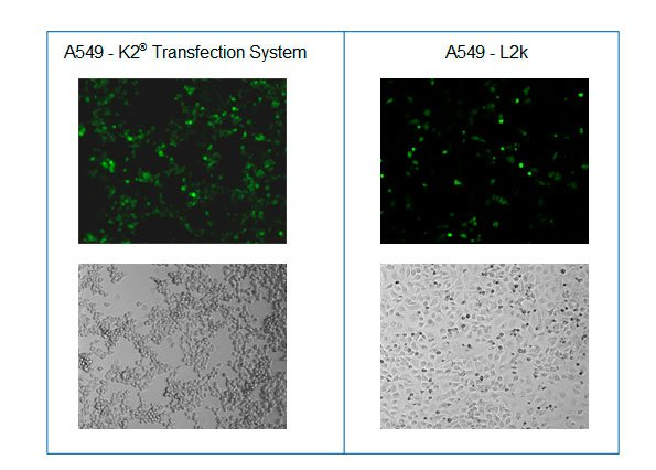 Microscopy after transfection of A549 cells with K2® Transfection System and L2k