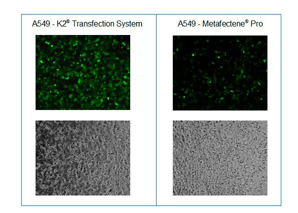 Microscopy after transfection of A549 cells with GFP encoding mRNA and K2® Transfection System compared to METAFECTENE® PRO